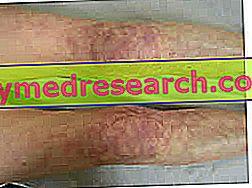 inflamație articulară în vasculită