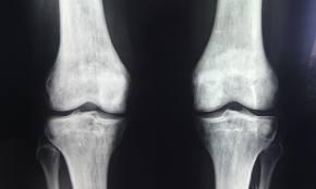 Radiografia in gonartroza: cum te pregatesti si care este procedura