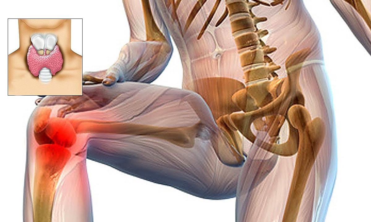 Hormoni pentru durerile articulare