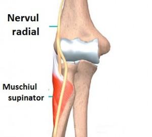 nervul ciupit în tratamentul articulației cotului