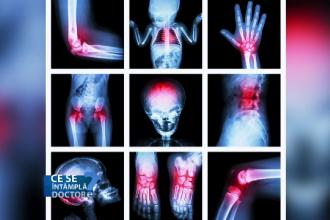 tratarea leziunilor la genunchi și artroză