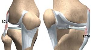 deteriorarea parțială a ligamentului colateral al genunchiului)