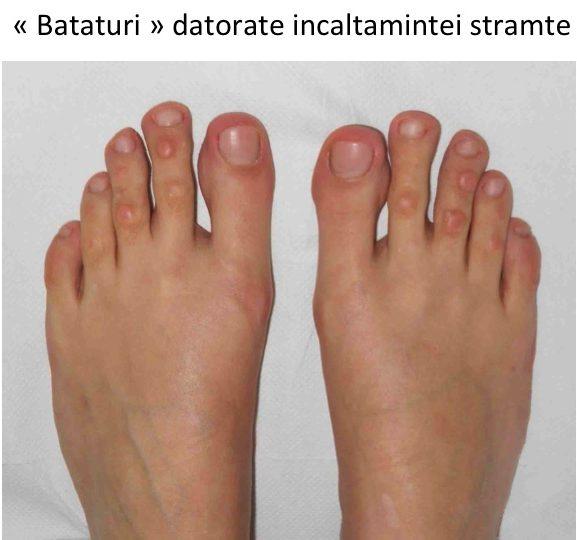 tratament pentru artroza degetelor de la picioare