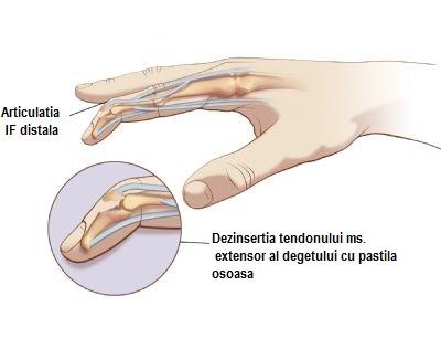 degetul în articulație este umflat și dureros)