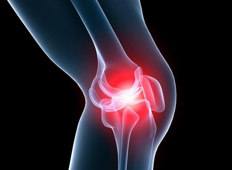 artroza articulației pe picior