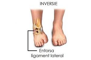 semne de artrită a articulațiilor degetelor unguent galben pentru dureri articulare