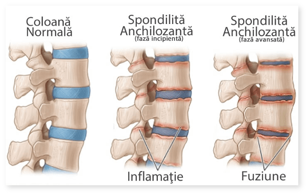 dureri articulare bioptron