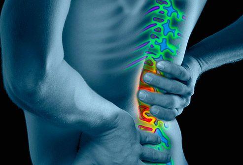 Ce vitamine să bei cu artroza articulației genunchiului - studioharry.ro