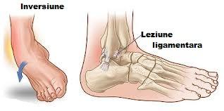 tratamentul articulației gleznei după luxație