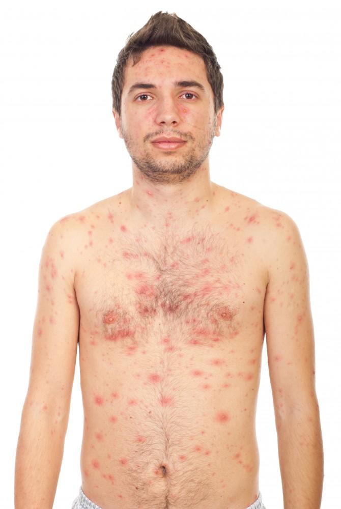 Poate răni articulațiile cauzate de alergii