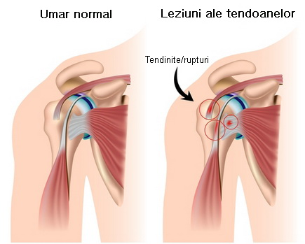 durere la nivelul articulației umăr și umăr)