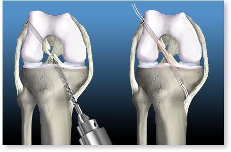 tratamentul ligamentului cruciat anterior al genunchiului