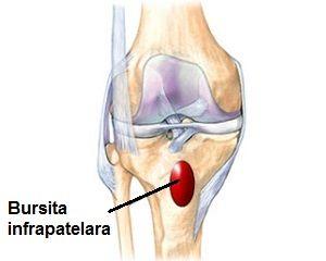bursita de gâscă a tratamentului articulației genunchiului
