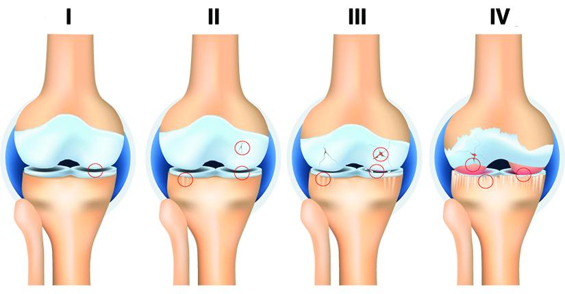 artroza degenerativă a genunchiului)