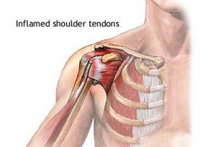 durere acută în articulația umărului și braț)