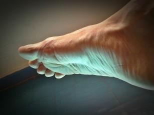 articulație dureroasă de la deget la mers)
