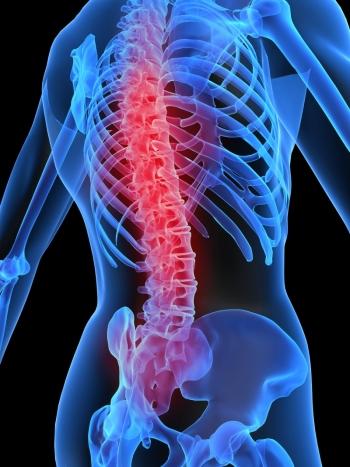 boli de coborâre ale coloanei vertebrale și articulațiilor)