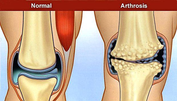 ce este artroza articulației șoldului de gradul doi)