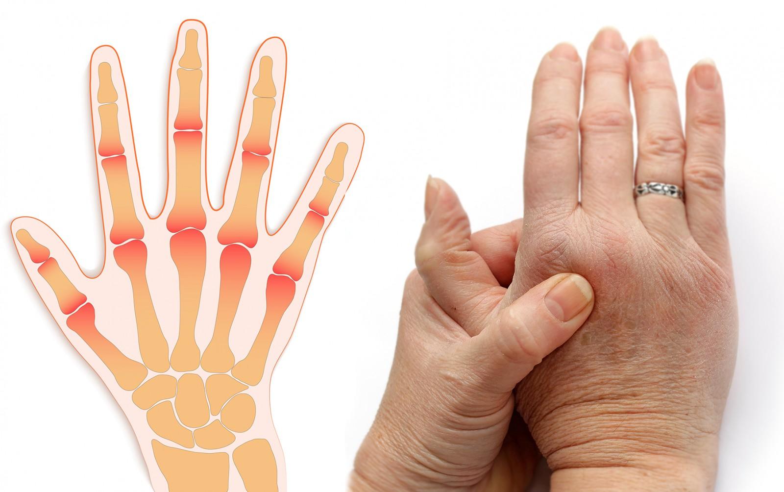 боль в суставах возле большого пальца