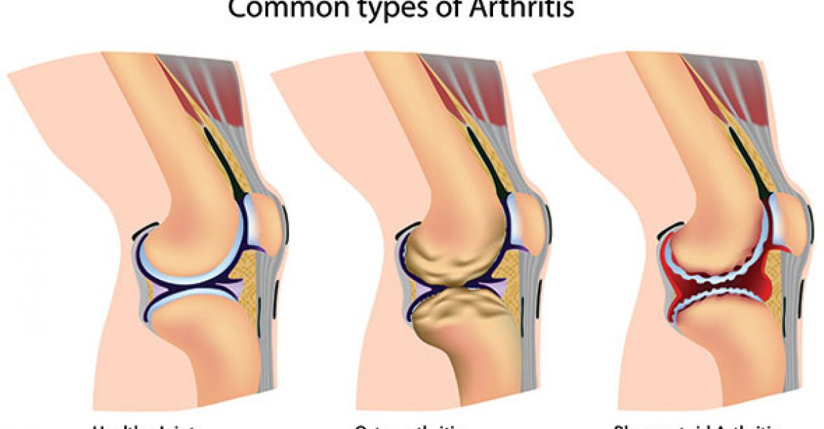 Boala adolescenței articulației genunchiului. Cele mai frecvente 10 cauze ale durerilor de genunchi