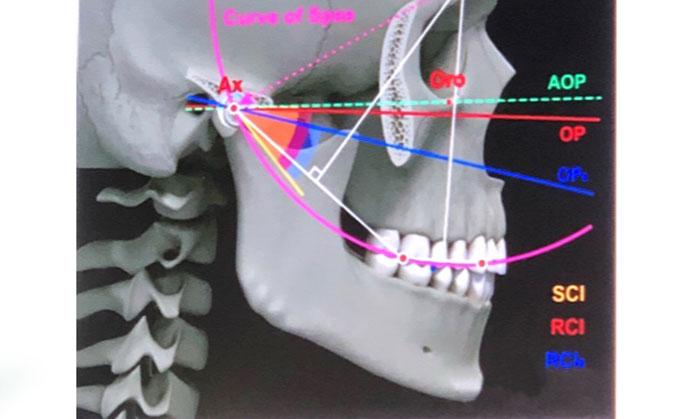 durerile articulare și ale dinților