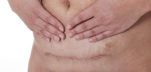 articulațiile doare după cezariană)