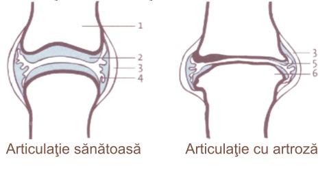 tratarea articulațiilor din cornul strâmb)