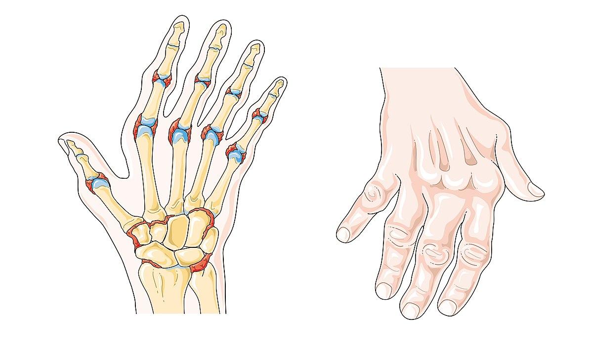 tratamentul durerii la nivelul articulațiilor umărului și genunchiului