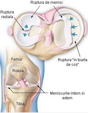 menisc al tratamentului conservator al genunchiului)