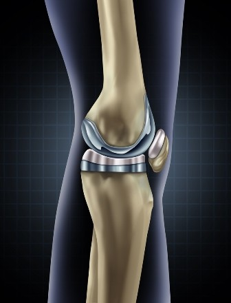 medic pentru tratamentul artrozei genunchiului)