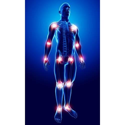 Crăpături și articulații dureroase în tot corpul