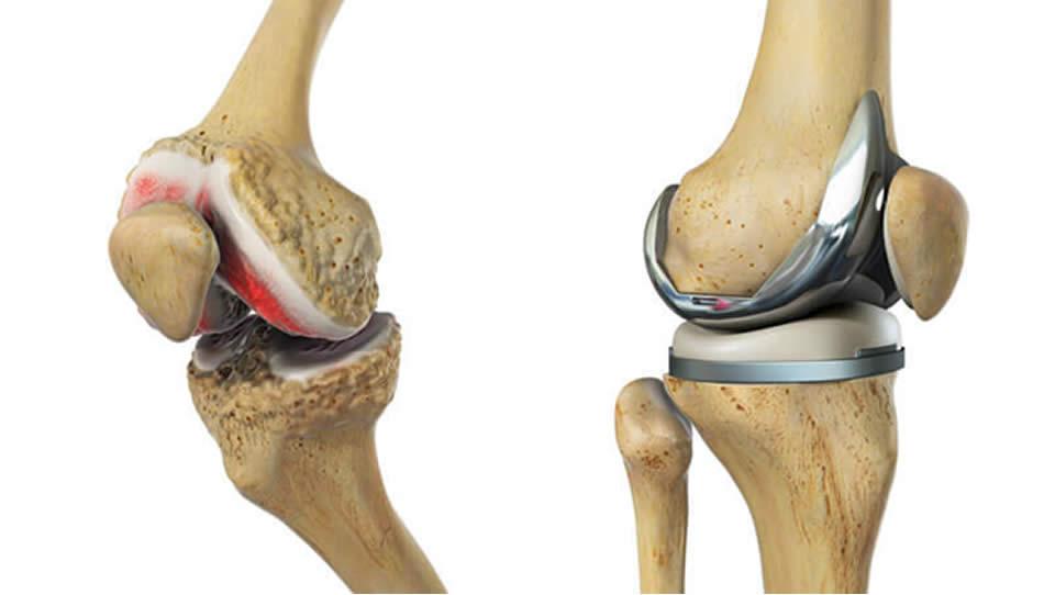de ce durează articulația genunchiului?)