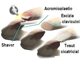 osteoartrita articulației)