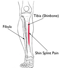 Gleznele doare după alergare, Trageri de dureri în articulațiile mâinilor