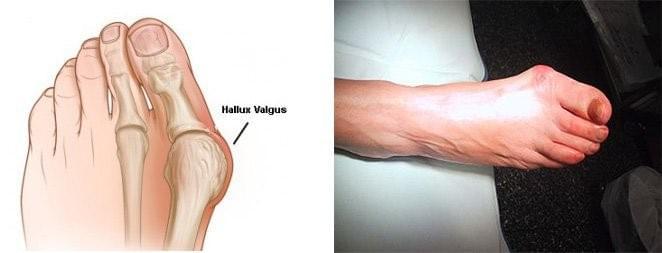 poliartroza tratamentului articulațiilor umflarea și durerea genunchiului