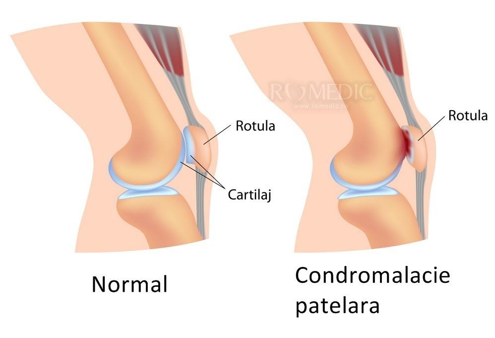numele bolii inflamației genunchiului)