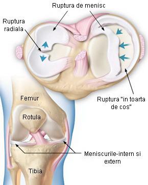 afectarea meniscului cronic la articulația genunchiului stâng)