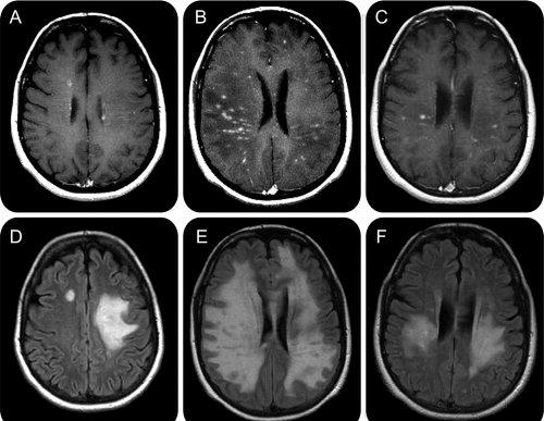 dureri de șold și scleroză multiplă