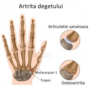 durere la nivelul articulației piciorului umflarea doare articulațiile