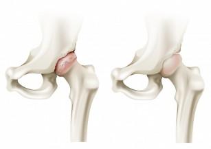 terapie cu laser pentru artroza articulației șoldului)