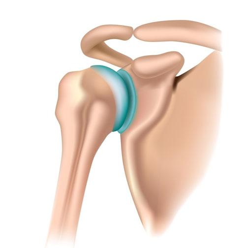 tratamentul luxațiilor articulației umărului