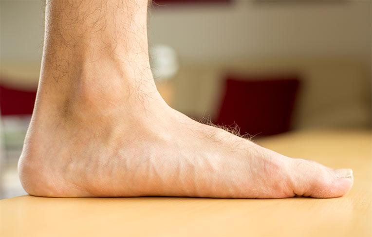 picioare plate și durere în articulațiile piciorului