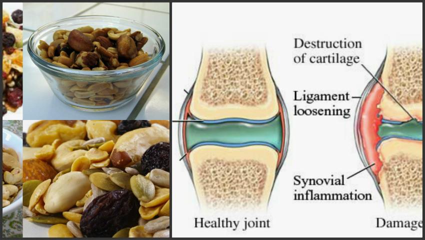 Tratamentul artrozei cu semințe de in