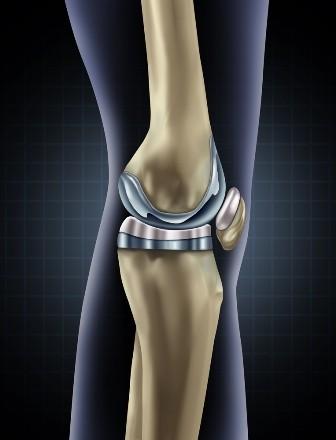 artroza progresivă a genunchiului)