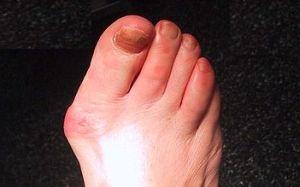 articulație dureroasă de la deget la mers