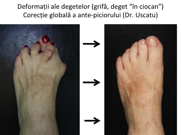 unde să tratezi artroza piciorului