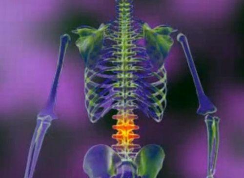 Afectiuni ale coloanei vertebrale
