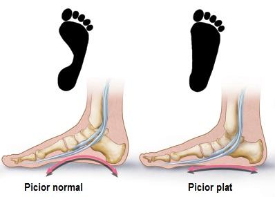 artrita articulației piciorului stâng