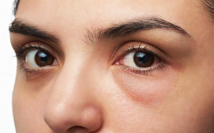 umflarea pleoapelor și dureri articulare