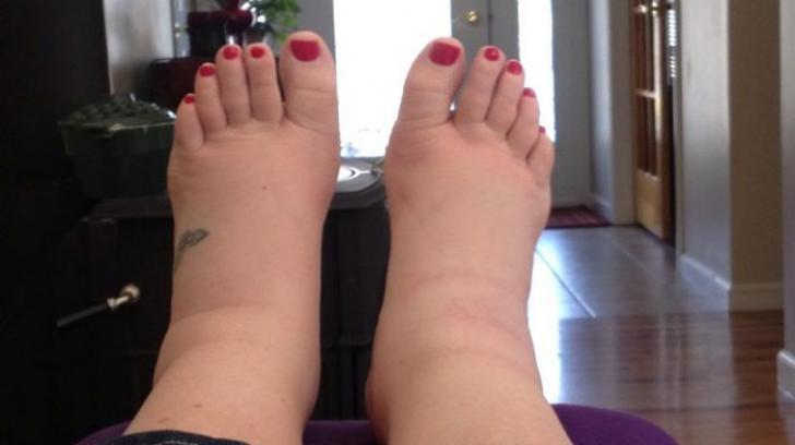 Semne de alarma: umflarea picioarelor (edem) | studioharry.ro
